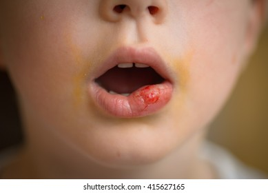 Damaged lip - bitten after anesthesia at dentist office