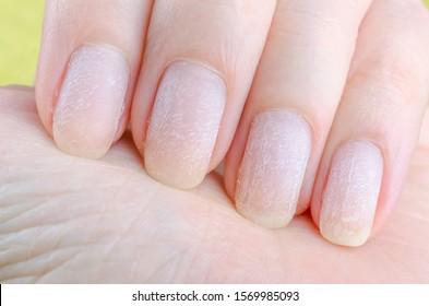 damaged nails after removing modern gel nail polish