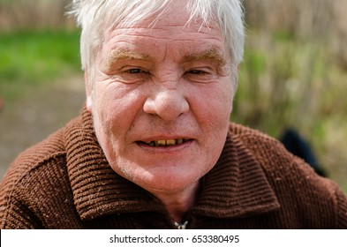 The dangers of alcohol. Old man with a chubby face. Missing teeth , rest on the nature.