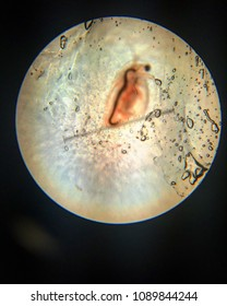 Daphnia under microscope