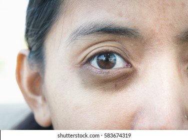 Dark circles around eye.