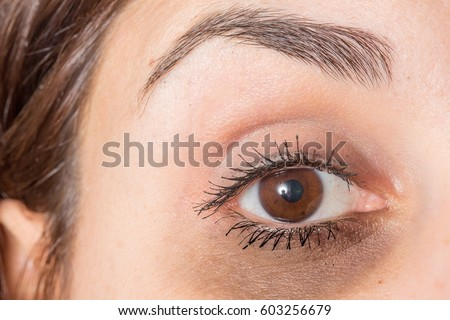 Dark circles under eye of lady