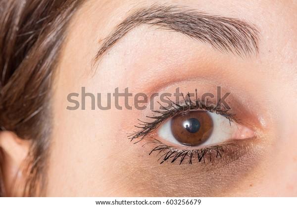 Dark circles under eye of lady