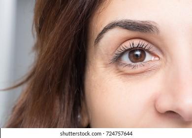 Dark circles under eye of young beautiful woman
