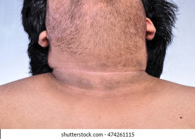 Image of: The Dark Skin Around The Neck Fat Man Asian Skin Styles At Life Fat Neck Images Stock Photos Vectors Shutterstock