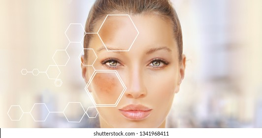 Hyperpigmentation Images, Stock Photos & Vectors | Shutterstock