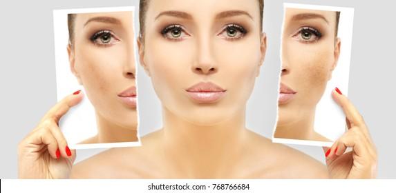 Dark spots, freckles,hyperpigmentation(melasma or chloasma)