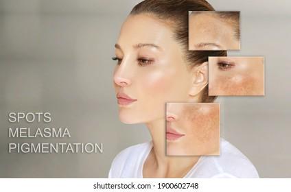 Dark spots, freckles,hyperpigmentation(melasma or chloasma),concept - skin lightening, skin whitening, fruit acids,AHA, Skin Brightening