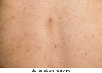 Dark spots on the skin