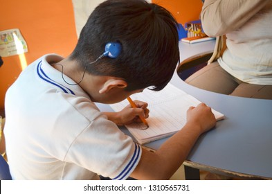 Deaf boy with cochlear implant studying