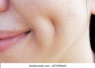 Deep Dimple on Asian Woman Cheek with Wide Pores Skin