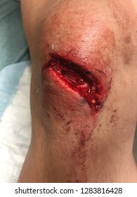 Deep knee laceration