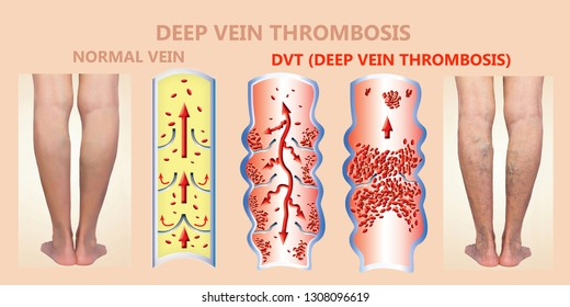 deep vein thrombosis or blood clots  embolus  structure of normal and  varicose female veins