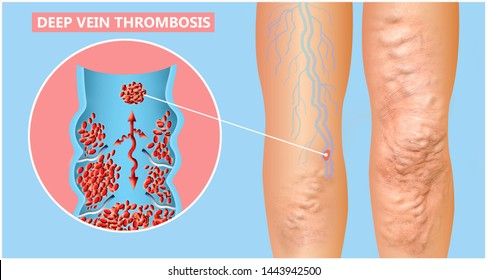 Deep Vein Thrombosis or Blood Clots. Embolus. Structure of normal and varicose female veins. Illustration was created by me