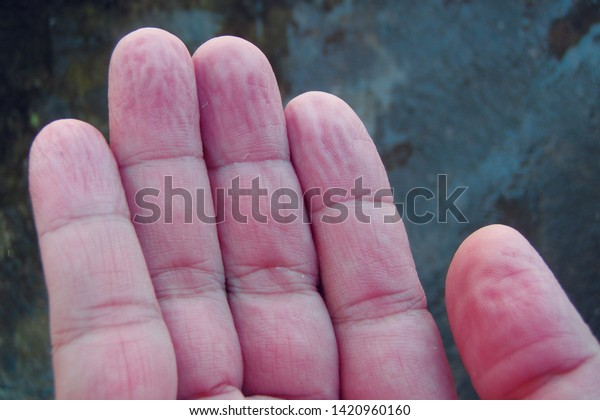 Dehydration of fingers and hand skin