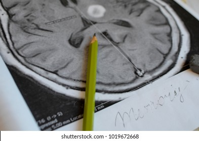 Dementia illness and disease as a loss of brain function and memories as alzheimers as a medical health care icon of mental problems  A picture of a stroke