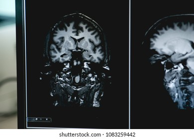 Dementia MRI brain for study  alzheimer's disease