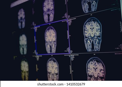 Dementia on film MRI for diagnostic