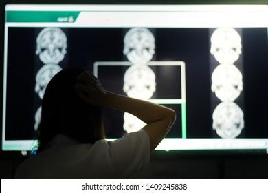 Dementia on MRI for education