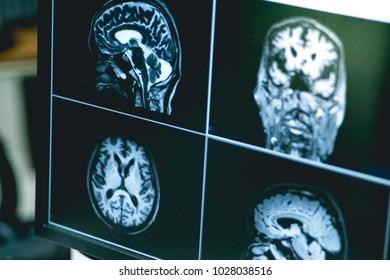 Dementia on MRI film