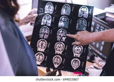 Dementia on MRI film  brain atrophy study