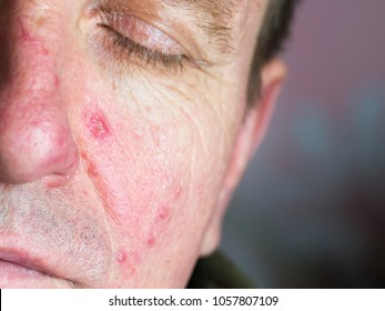 Demodecosis of the face. Reddened, inflamed skin. Pustular eruptions. Manifestation of small veins on the surface.