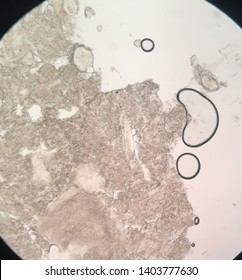 Demodecosis is a skin disease in which the parasitic Demodex mite infects the ducts of the sebaceous glands.
