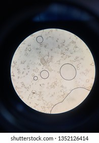 Demodex folliculorum parasite on microscopic examination of KOH mount from skin scrapings of facial lesions