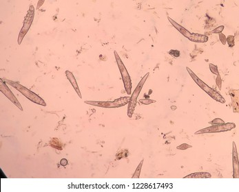 Demodex mange from a microscope view.