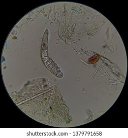 Demodex on dog's skin photography taken with microscope under big magnification