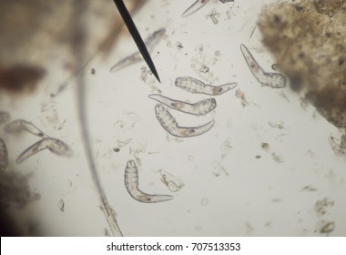 Demodex parasite under the skin in dog take a photo from microscope