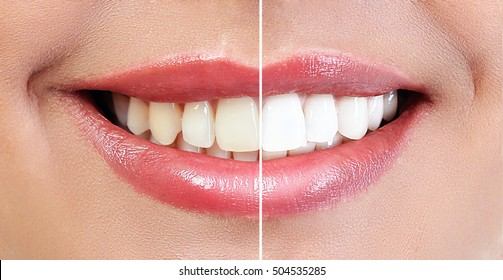 Demonstration of dental whitening result, before and after procedure. Dentistry concept.