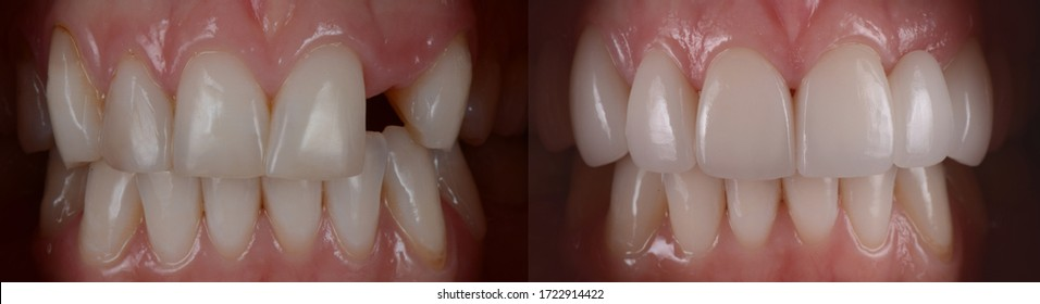 Dental all ceramic bridge before and after. Dental bridge prosthetic at front teeth to replace missing teeth.
