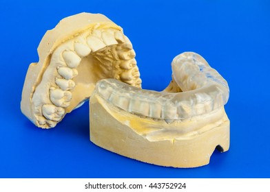 dental bite with stone model on a blue background