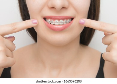Dental braces in happy womans mouths who shows by two fingers on brackets on the teeth after whitening. Self-ligating brackets with metal ties and gray elastics or rubber bands for perfect smile.