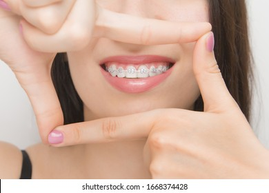 Dental braces in happy womans mouths through the frame. Brackets on the teeth after whitening. Self-ligating brackets with metal ties and gray elastics or rubber bands for perfect smile. Orthodontic