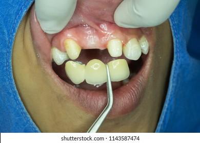 A dental bridge is preparing to insert in front teeth