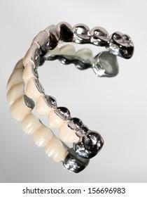 Dental bridge and its reflection image