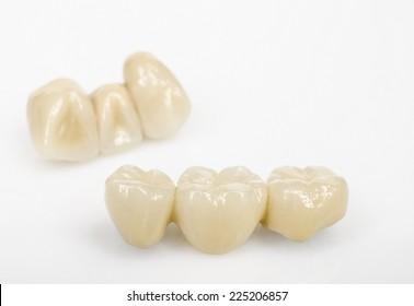 dental bridges, ceramics