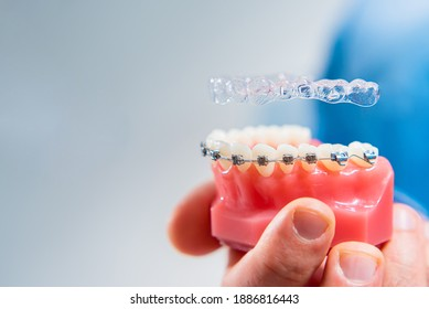 Dental care.Smiling dentist doctor holding aligners and braces in hand shows the difference between them