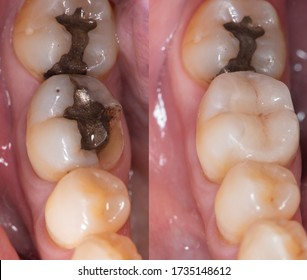 Dental collage, closeup of teeth before and after dental ceramic onlay treatment.