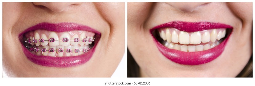 Dental collage, closeup of teeth before and after dental braces, same woman 2 year difference, authentic image
