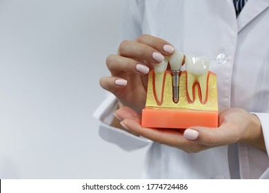 dental concept. the hands of a dentist doctor hold a model of teeth with a dental implant