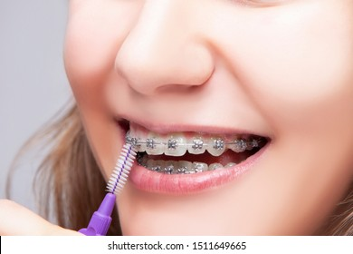 Dental Concepts. Exeteme Closeup Portrait of Teenage Girl Using Bristle Brush for Cleaning Braces and Teeth. Horizontal image
