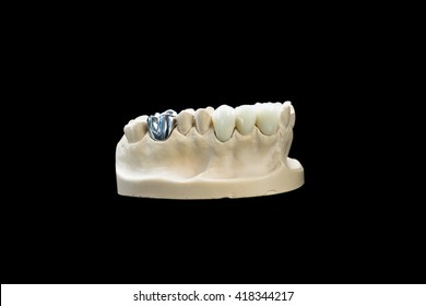 Dental crowns on a dental cast
