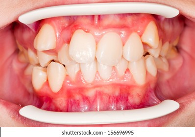 Dental displacement, which needs orthodontic treatment
