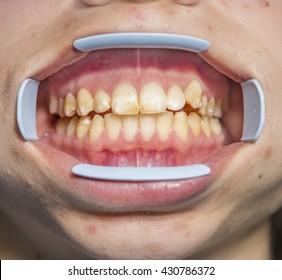 Dental fluorosis (also termed mottled enamel) is hypomineralization of tooth enamel.  Metabolism dysfunction, unhealthy skin, underdeveloped girl's lower jaw