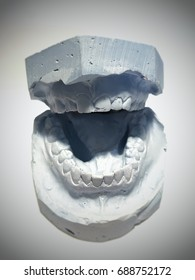 Dental gypsum model mould of teeth in plaster. Both sides widely open.