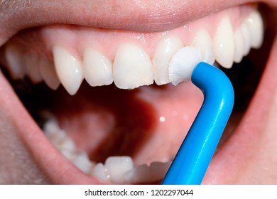 Dental hygienist examining a patient's teeth in the dentist.