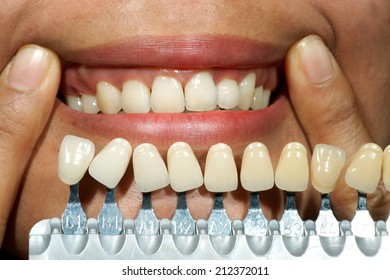Dental Implant Images, Stock Photos & Vectors | Shutterstock